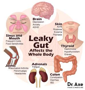 leaky gut symptoms